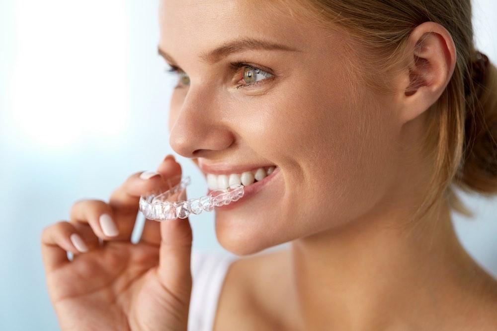 Ortodonzia Trasparente Studi dentistici Montagna