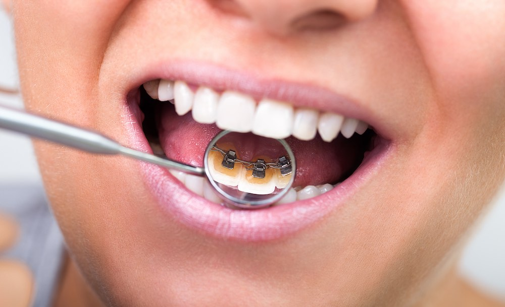 Ort linguale 12   Montagna Studi Dentistici   Dentista a Bovolone