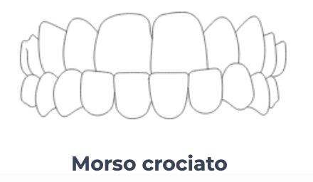 Schermata 2020 03 18 alle 11.18.31   Montagna Studi Dentistici   Dentista a Bovolone