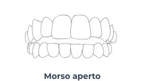 Screenshot 2020 10 21 Apparecchio invisibile a Trastevere Masterdent1   Montagna Studi Dentistici   Dentista a Bovolone