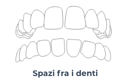 Screenshot 2020 10 21 Apparecchio invisibile a Trastevere Masterdent3   Montagna Studi Dentistici   Dentista a Bovolone