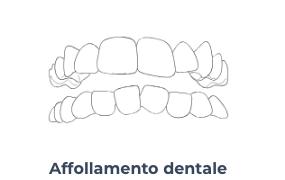 Screenshot 2020 10 21 Apparecchio invisibile a Trastevere Masterdent4   Montagna Studi Dentistici   Dentista a Bovolone