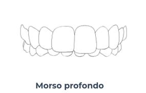 Screenshot 2020 10 21 Apparecchio invisibile a Trastevere Masterdent5   Montagna Studi Dentistici   Dentista a Bovolone