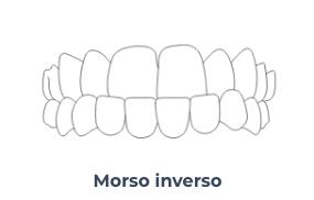 Screenshot 2020 10 21 Apparecchio invisibile a Trastevere Masterdent6   Montagna Studi Dentistici   Dentista a Bovolone
