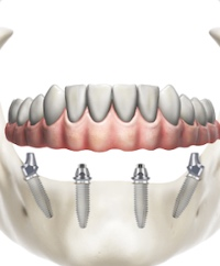 Impianto dentale su 4 impianti a carico immediato