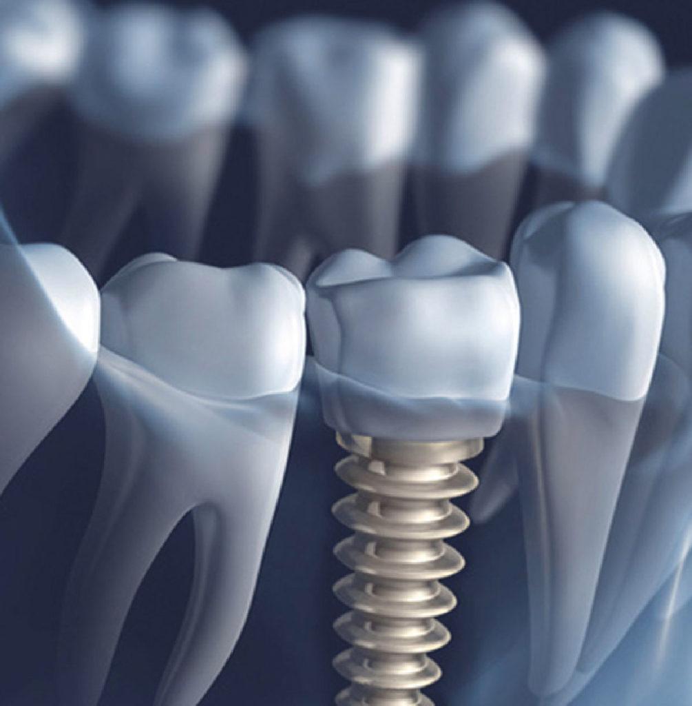 Implantologia-Studi-Montagna Verona