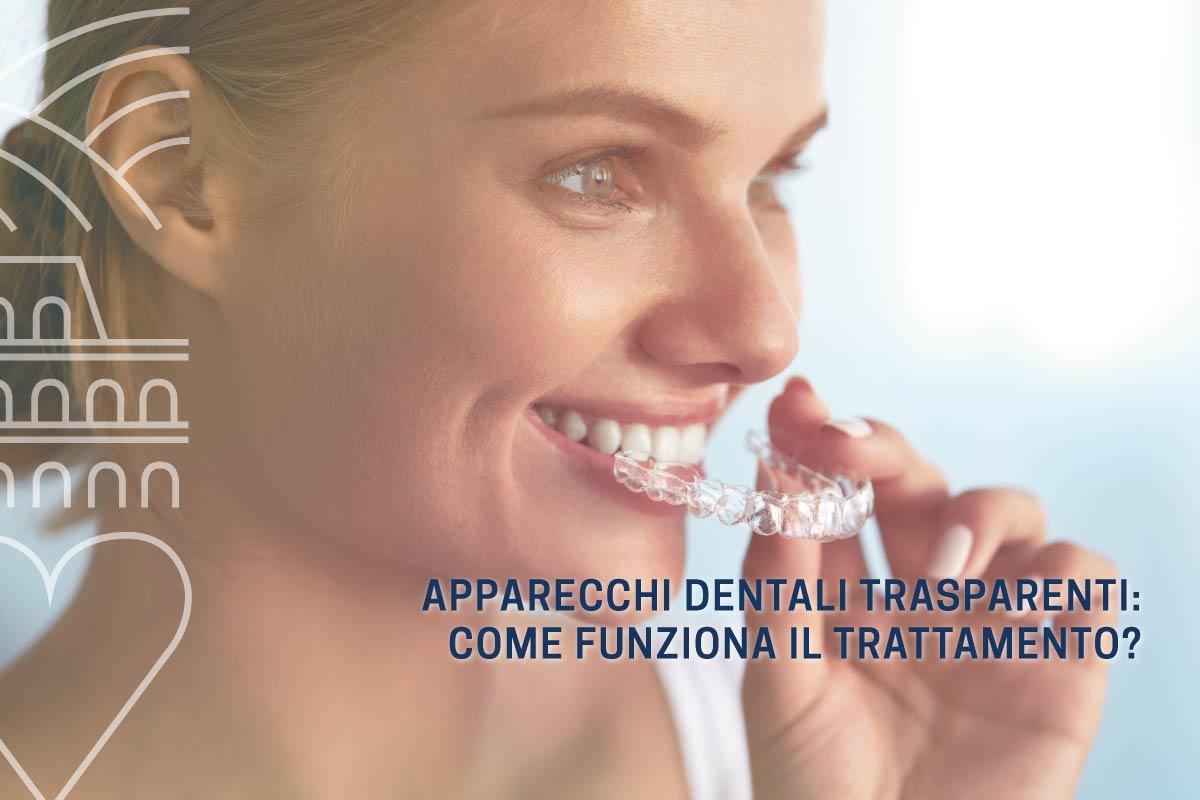 apparecchi-dentali-trasparenti